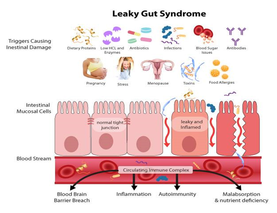 Schema des Leaky Gut Syndrom